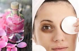 الهالات السوداء حول العين - وصفات ماء الورد لعلاج الهالات السوداء تحت العين
