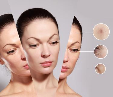 Differents problemes peaux visage - 3 alternatives naturelles qui vous permettront d'obtenir une peau régénérée