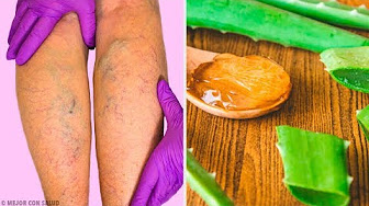 hqdefault - Olive oil and garlic to treat varicose veins and eliminate spider veins