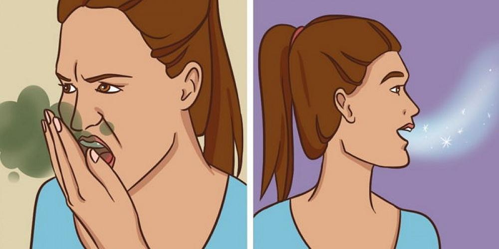18adb9e0d2b486143f6f5c6bc73f547a - Natural Remedies to Eliminate Bad Breath