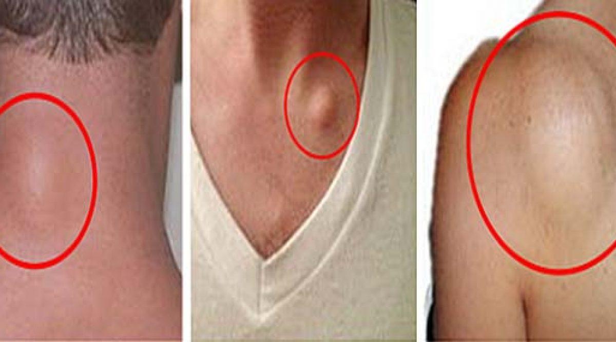eliminez le tissu graisseux 1200x667 - 3 remèdes naturels qui permettent de traiter les lipomes de manière très efficace