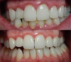 Astuces naturelles qui vous permettront d'éliminer la plaque dentaire - Astuces naturelles qui vous permettront d'éliminer la plaque dentaire