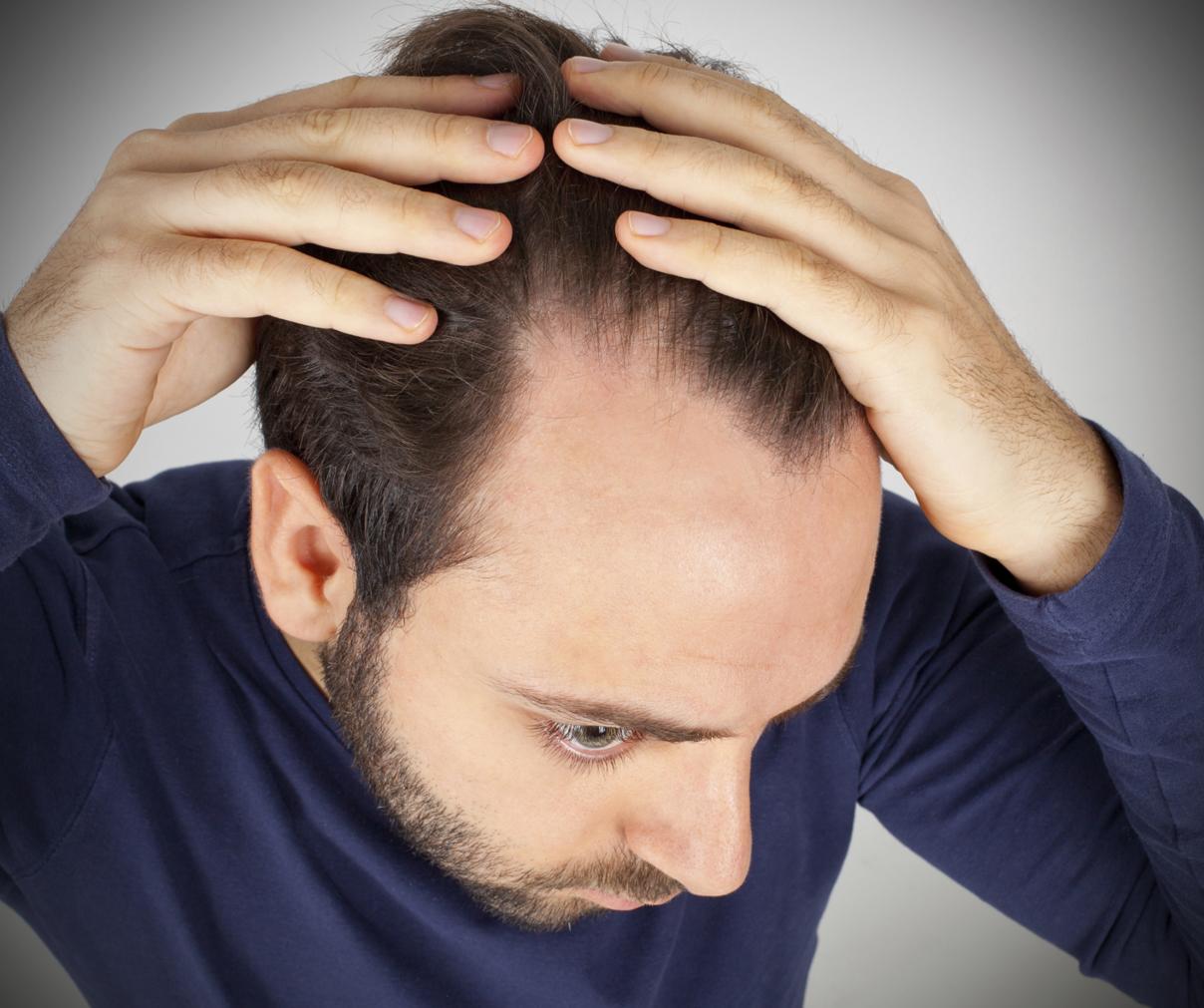 Recette pour stimuler la reproduction des poils de votre chevelure rapidement  - وصفة لتحفيز تكاثر شعرك بسرعة