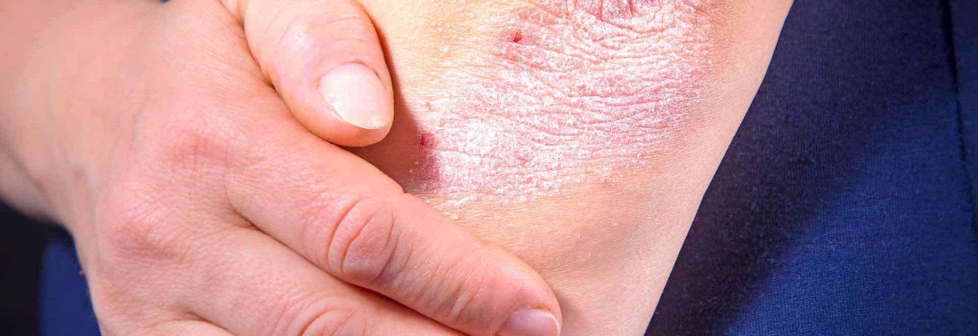 Crèmes naturelles pour traiter le psoriasis - Crèmes naturelles pour traiter le psoriasis