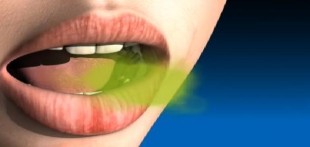 رائحة الفم الكريهة نهائيا - علاج رائحة النفس الكريهة وجعلها عطرة طيلة اليوم في رمضان