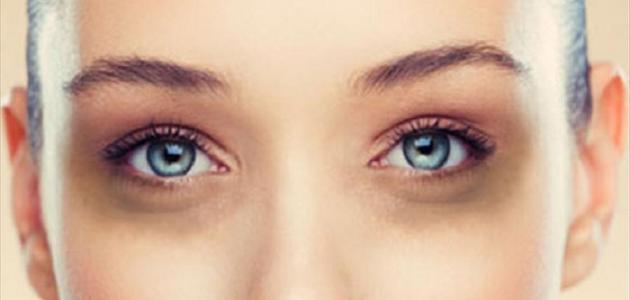 الهالات السوداء تحت العين وعلاجها - الهالات السوداء وعلاجها طبيعيا