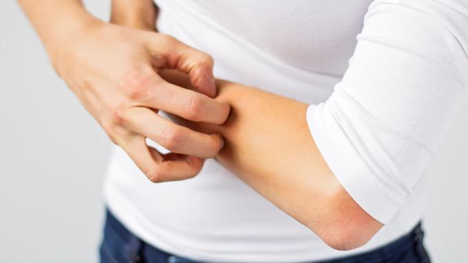Prévenir et traiter les démangeaisons - منع وعلاج الحكة