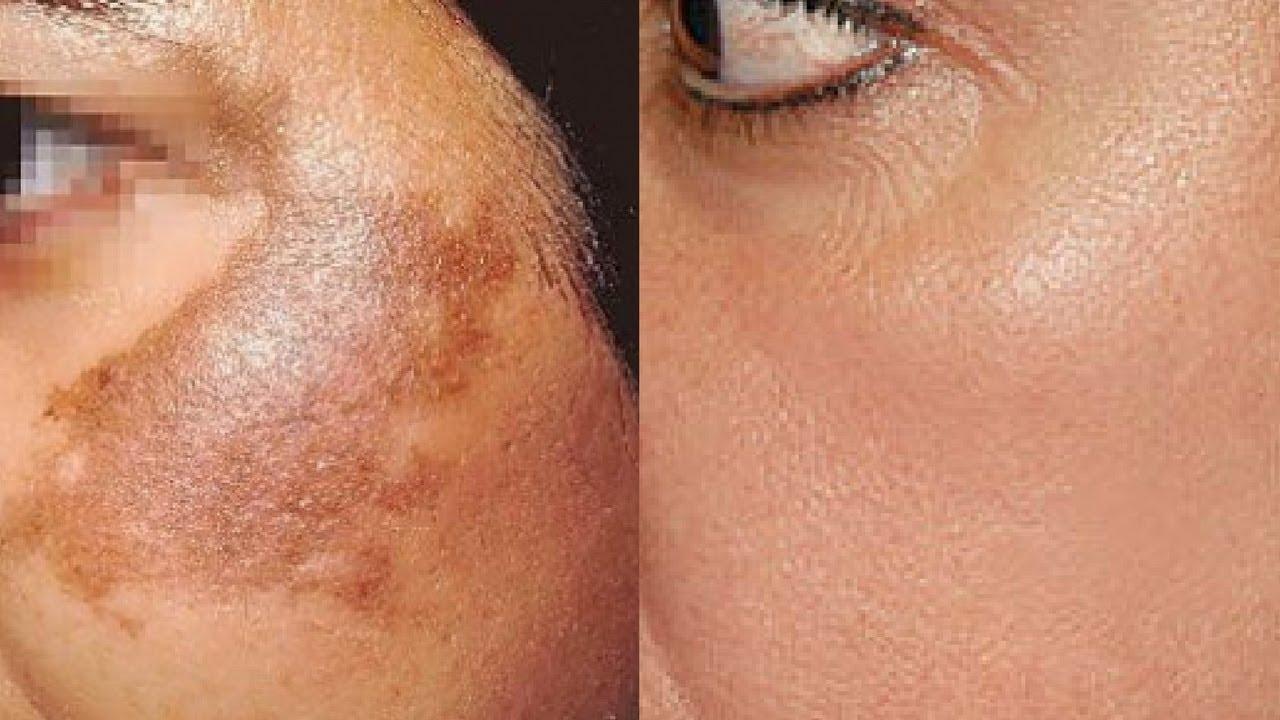 Crème naturelle fait maison contre les taches brunes de la peau - Crème naturelle fait maison contre les taches brunes de la peau