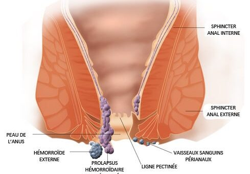 5 home remedies to fight hemorrhoids 489x340 - 5 home remedies to fight hemorrhoids