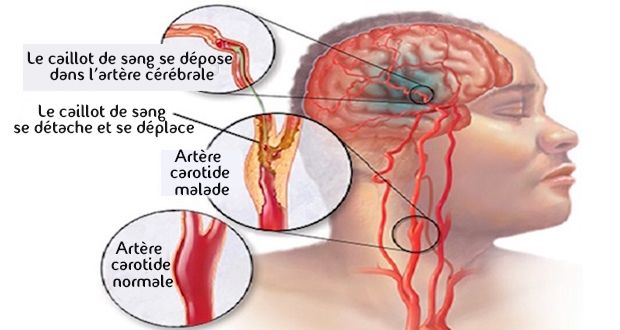 Stroke is a silent killer 10 signs to recognize - Stroke is a silent killer 10 signs to recognize