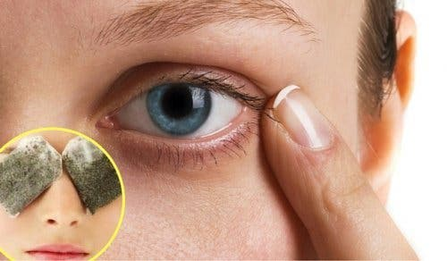These natural remedies help you fight dark circles - These natural remedies help you fight dark circles